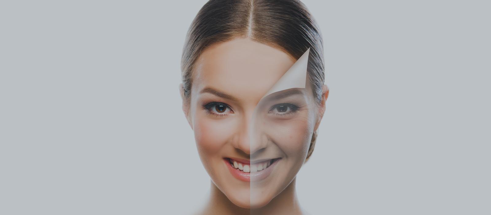 Chemical Peels Versus Laser Peels