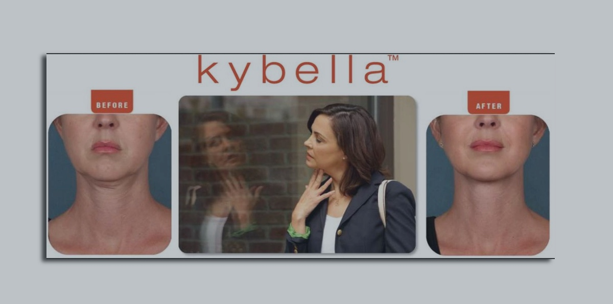 psi blog kybella double chin featured